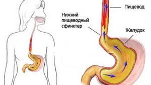 Изображение - Гипотония пищевода 3-37