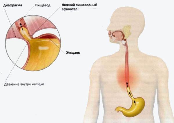 Невроз пищевода симптомы - Лечение гастрита