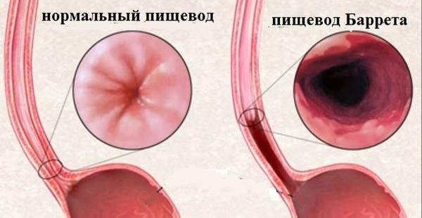 Изображение - Гипотония пищевода 5-37