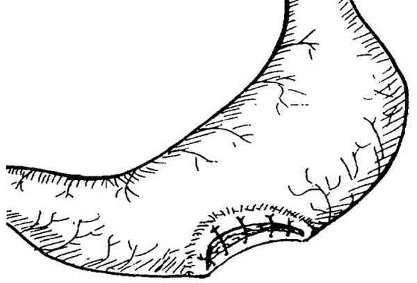 Операция язва желудка и послеоперационный период