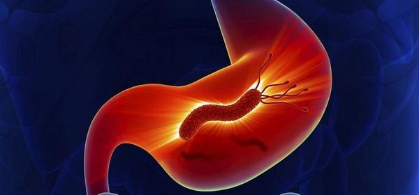 Бактерия Хеликобактер пилори: симптомы и лечение