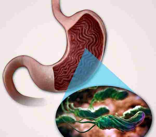 Тубулярная аденома желудка диета  Лечение гастрита